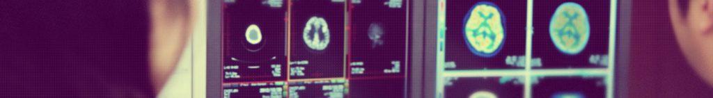 高度 医療画像解析支援(施設支援)